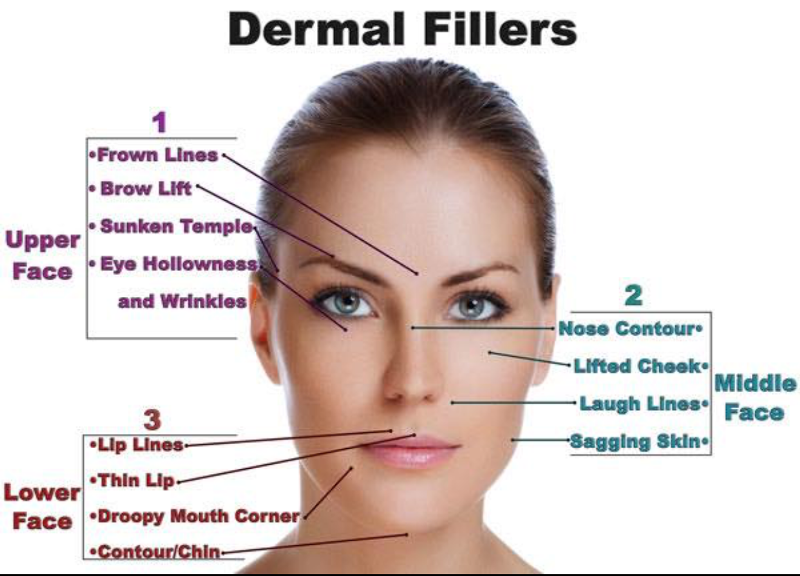 where dermal fillers can help with aging