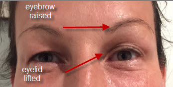 thermage treatment on eyelid and eyebrow