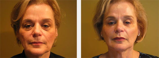 Lip augmentation with Teosyal™ before and after pictures