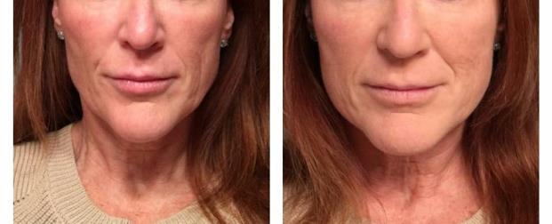Filler - mid face. Before and after on day of treatment. Redensity has vitamins and anti-oxidants. The results will improve over 6 weeks.
