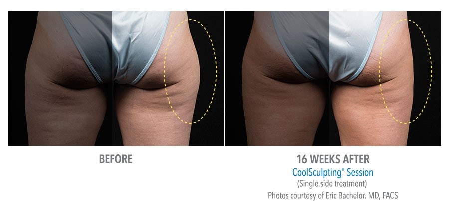Outer thighs Before and After Treatment with Coolsculpting