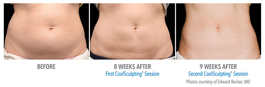 Flat abdomen after 9 weeks with Coolsculpting