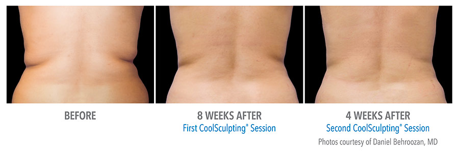 results with 2 sessions of Coolsculpting in Calgary