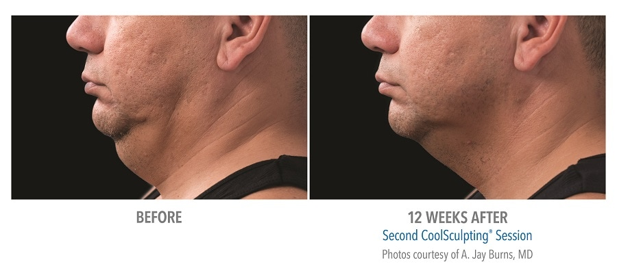 coolsculpting in Calgary reduces double chin