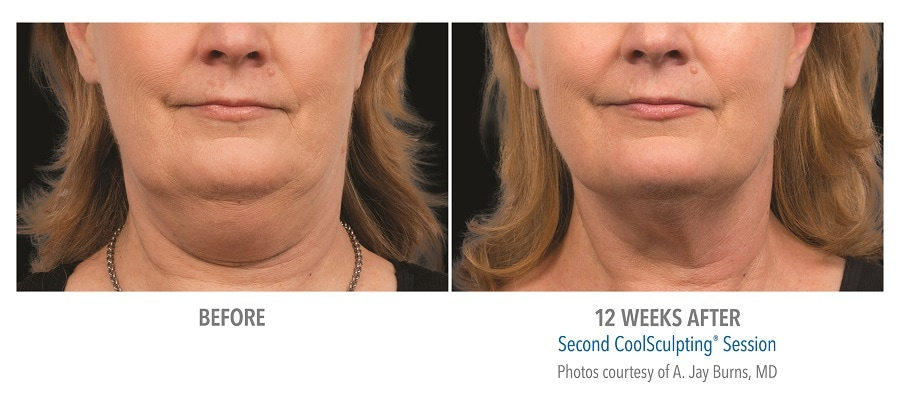 remove under chin pouch with Coolsculpting