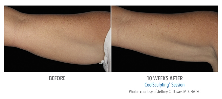 arm flap almost gone 10 weeks after Coolsculpting treatment