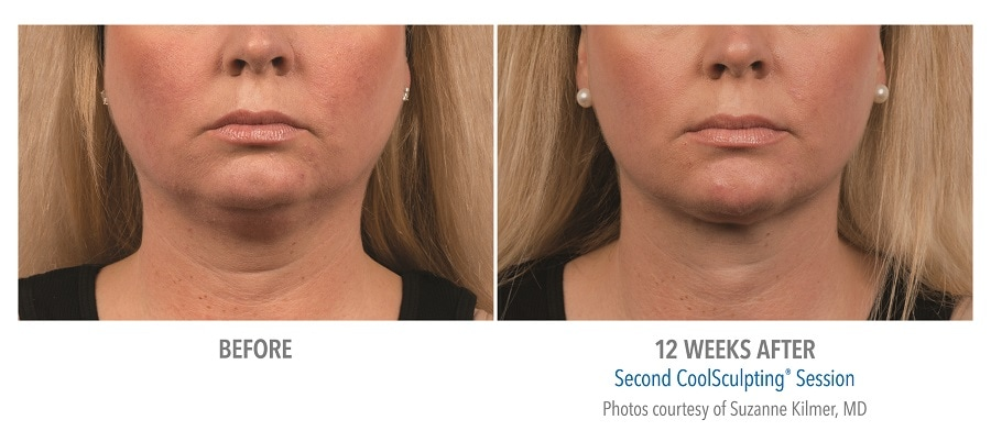 results of Coolsculpting treatment under chin after 12 weeks