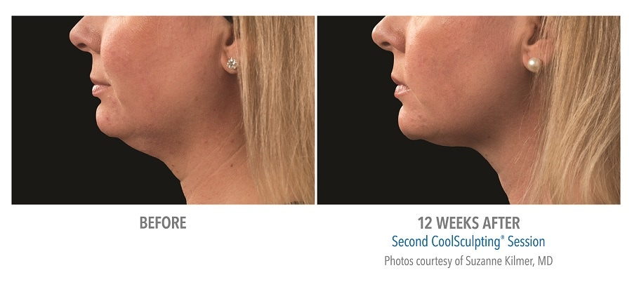 Reduce extra chins with Coolsculpting in Calgary