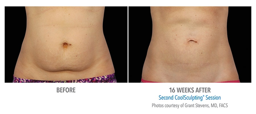 Coolsculpting Calgary results after 16 weeks