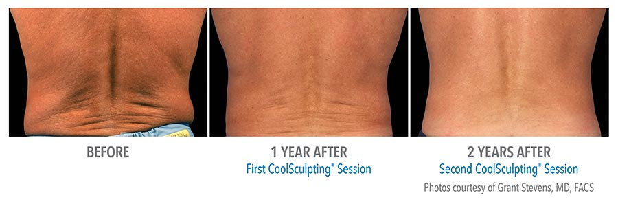 get rid of love handles with Coolsculpting in Calgary